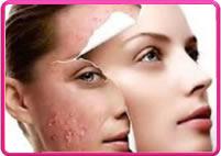 acne servicos